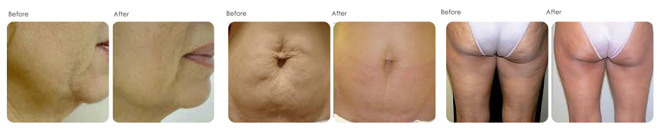 Accent XL at Evergreen Laser medical spa