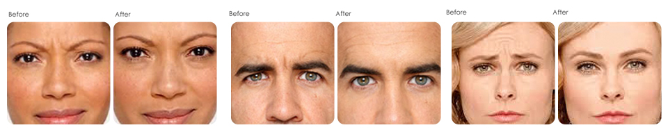 Botox at Evergreen Laser medical spa