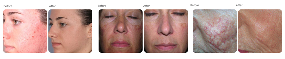 Chemical peels at Evergreen Laser Medical Spa