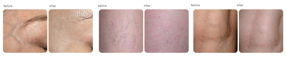 vein treatments at Evergreen laser medical spa