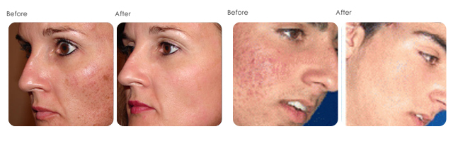 skin treatment at evergreen laser