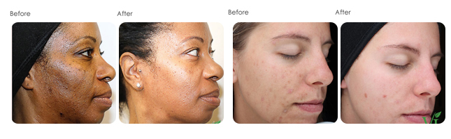 VI Peel Before and After Results